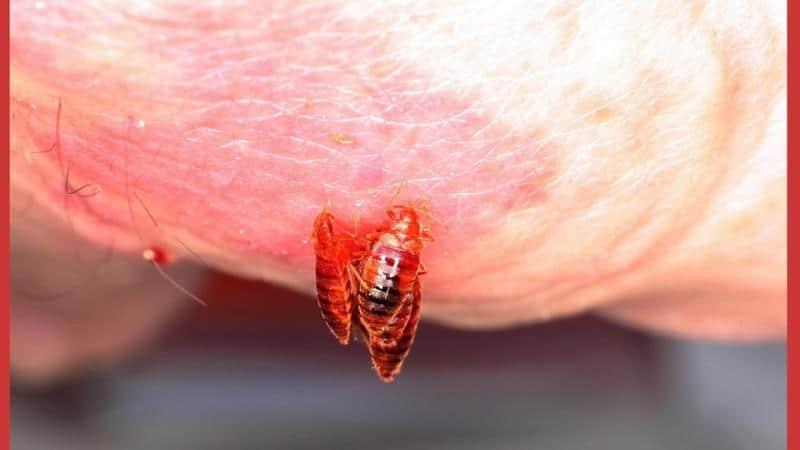 как выглядят паразиты в организме человека