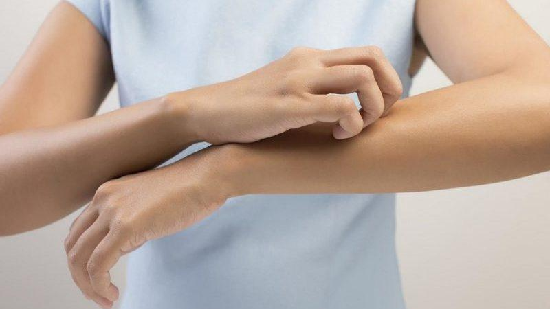 анкилостомидоз у взрослых симптомы и лечение