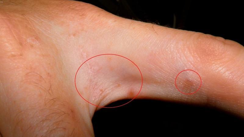чесоточный клещ у человека симптомы фото