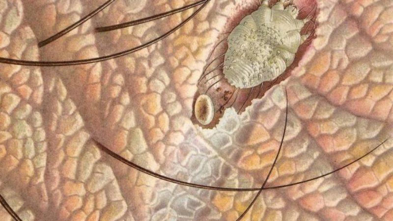 инкубационный период чесотки у человека