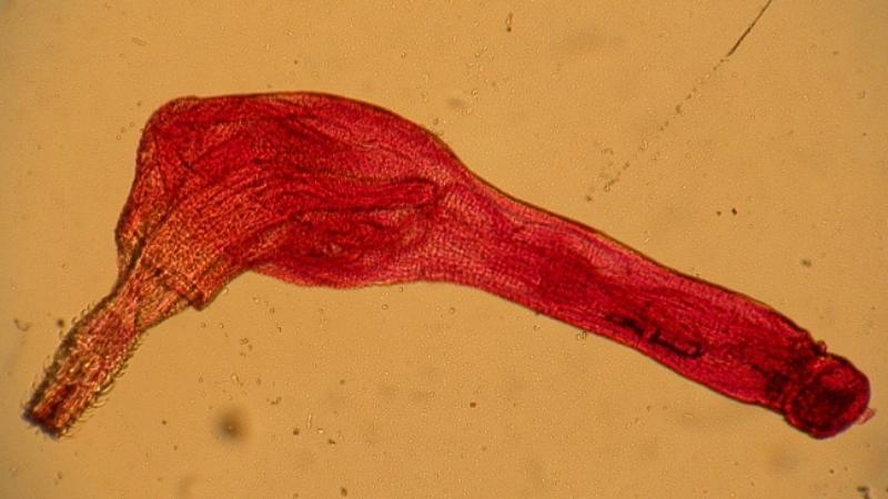 колючеголовые черви скребни в сайре опасны ли для человека