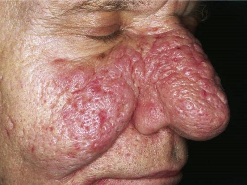 Кожное заболевание демодекоз