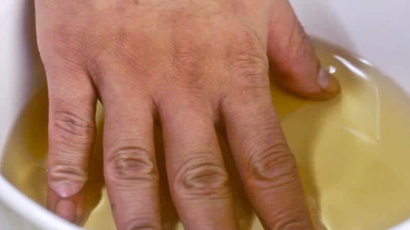 Лечение покраснение и зуд на ногах ниже колена