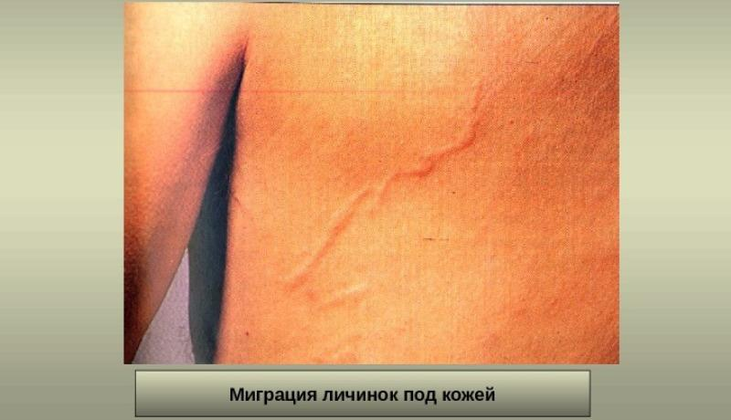 стронгилоидоз фото