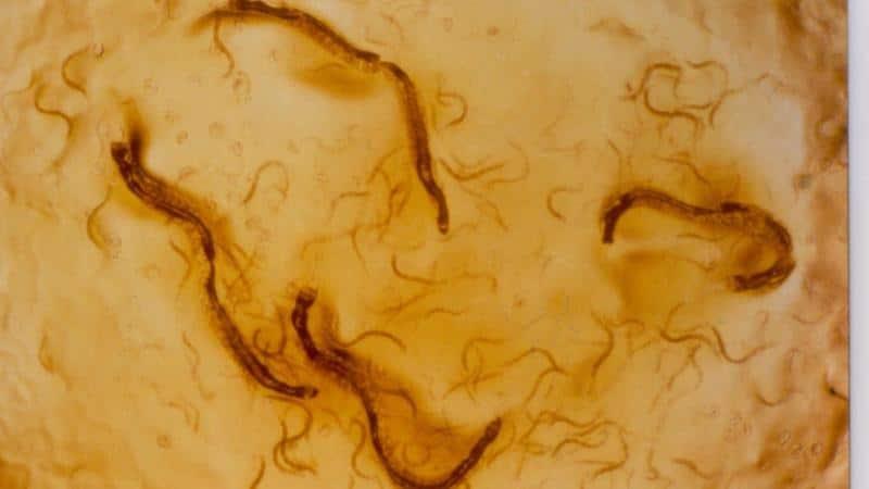 лечение стронгилоидоза