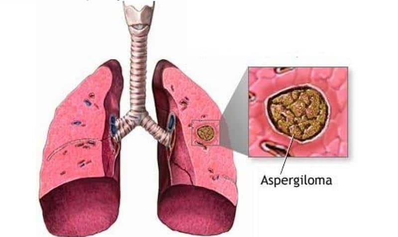 аспергиллез диагностика