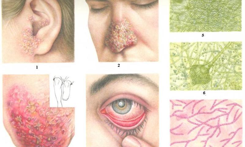 аспергиллез симптомы