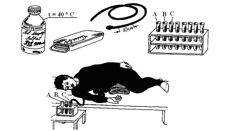 фракционный метод дуоденального зондирования