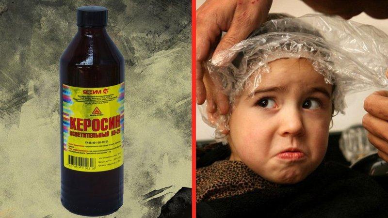 Керосин от вшей и гнид: как использовать, рецепт для детей и взрослых