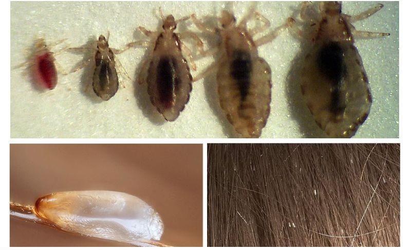 средство для выведения паразитов из организма