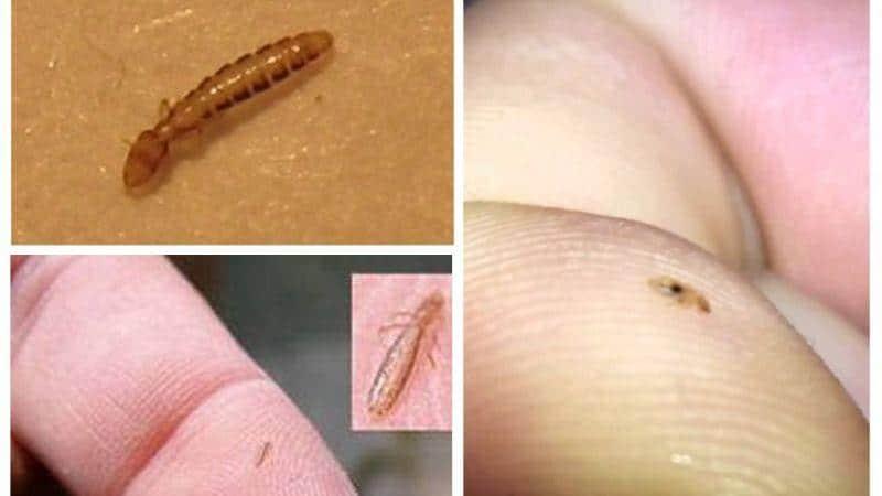живут ли человеке паразиты