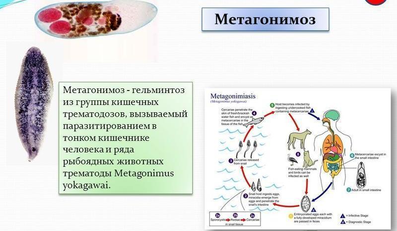 Метагонимоз: це що таке, симптоми і лікування у людини і риб metagonimus yokogawai » журнал здоров'я iHealth