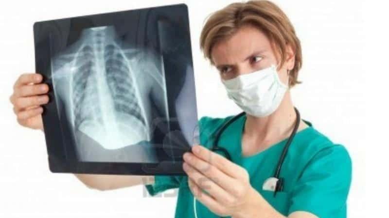 лечение пневмоцистоз