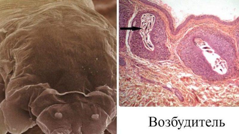 чесотка фото первые признаки фото лечение