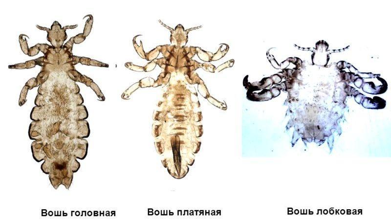 паразиты в голове человека